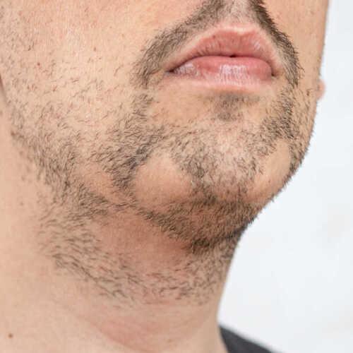 Dermopigmentare Barbă